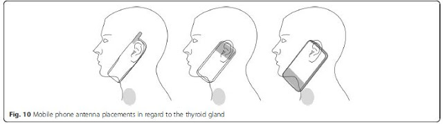 Thyroid Cancer & Mobile Phone Use, Smombie Gate | 5G | EMF