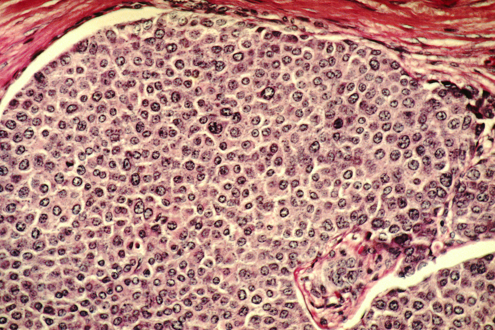 1599px-Breast_cancer_cells (2)